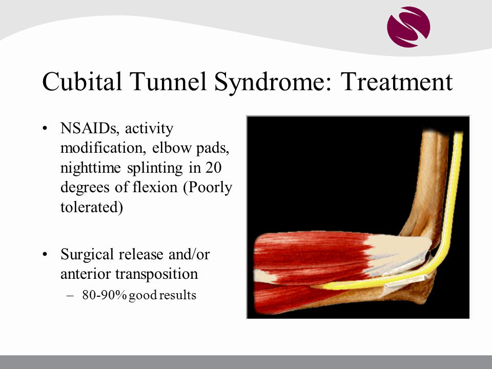Cubital Tunnel Syndrome: Treatment