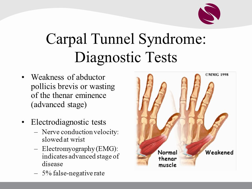 Carpal Tunnel Syndrome: Diagnostic Tests