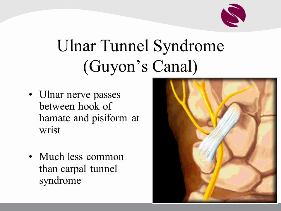 Ulnar Tunnel Syndrome (Guyon's Canal)