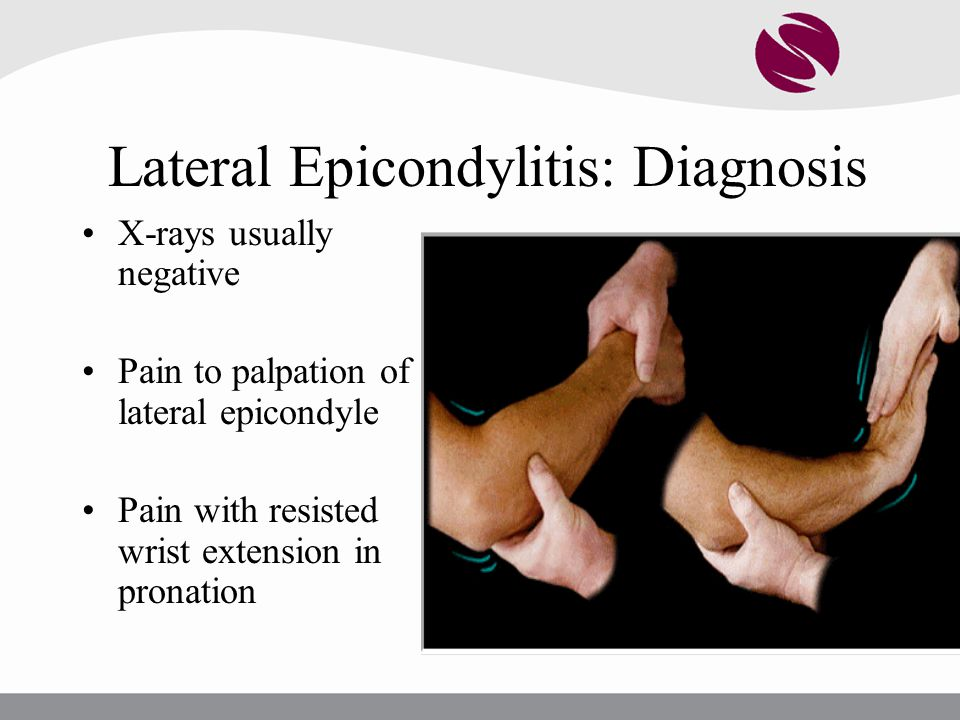 Lateral Epicondylitis: Diagnosis