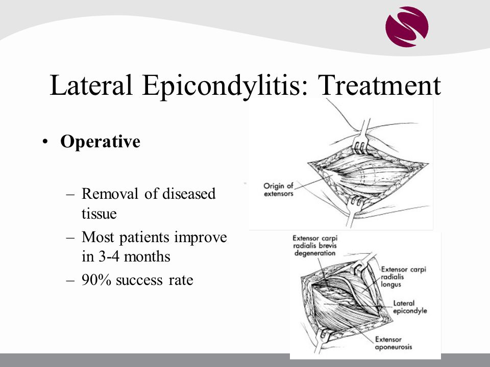 Lateral Epicondylitis: Treatment