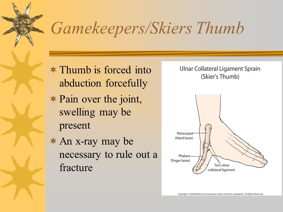 Gamekeepers/Skiers Thumb