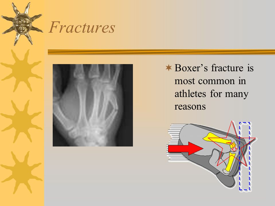 Fractures Boxer's fracture is most common in athletes for many reasons