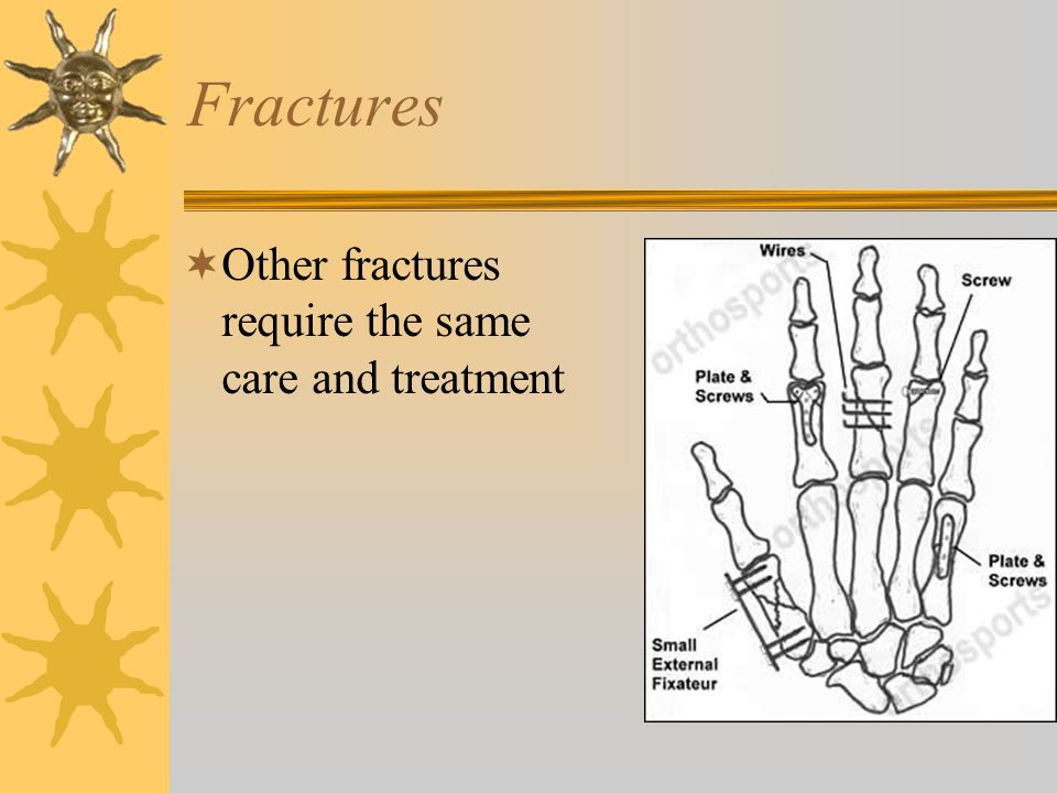 Fractures Other fractures require the same care and treatment