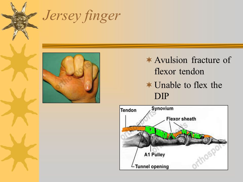 Jersey finger Avulsion fracture of flexor tendon