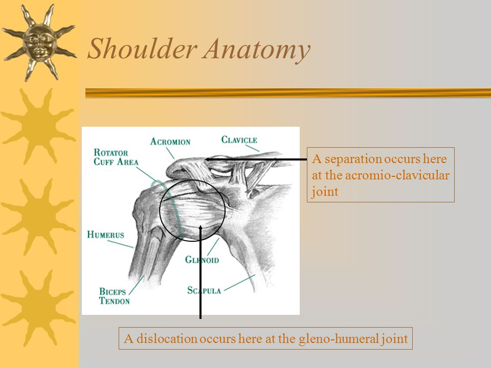 Shoulder Anatomy A separation occurs here at the acromio-clavicular joint.