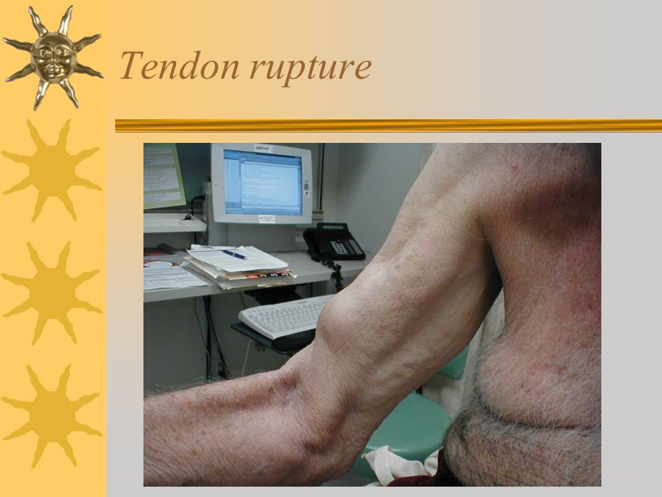 Tendon rupture