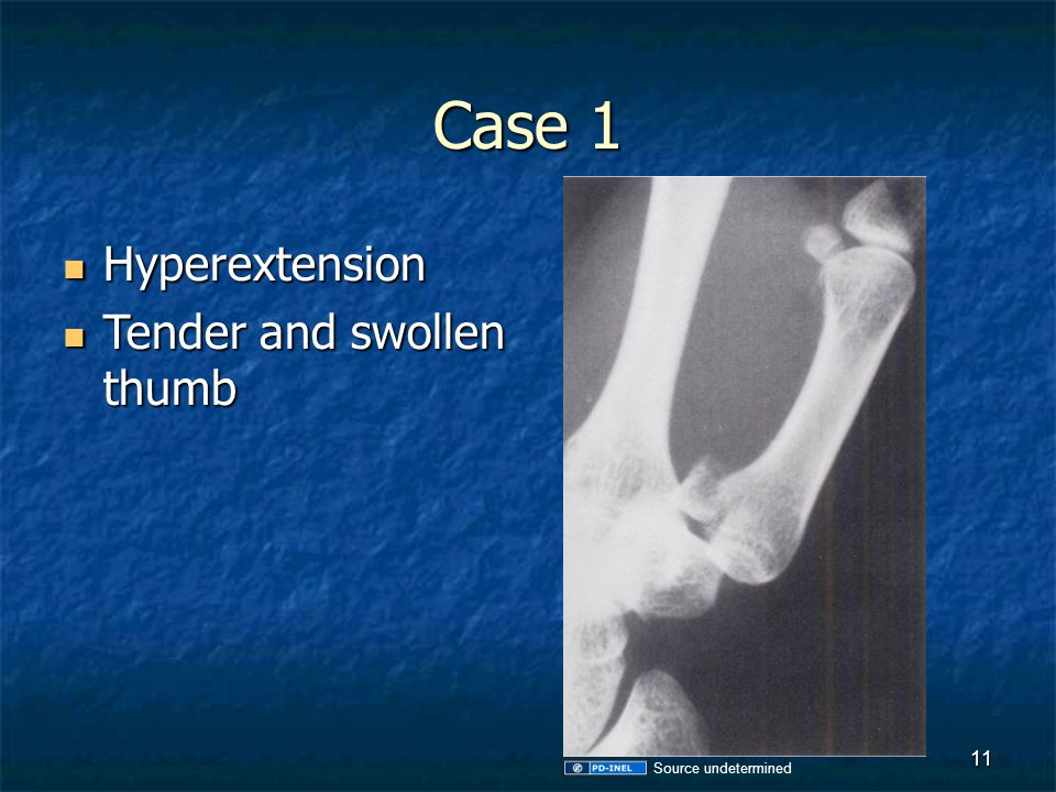 Case 1 Hyperextension Tender and swollen thumb Source undetermined