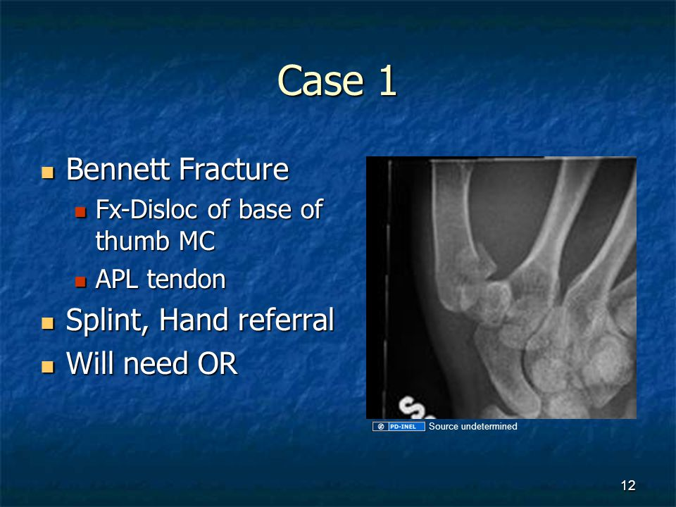 Case 1 Bennett Fracture Splint, Hand referral Will need OR