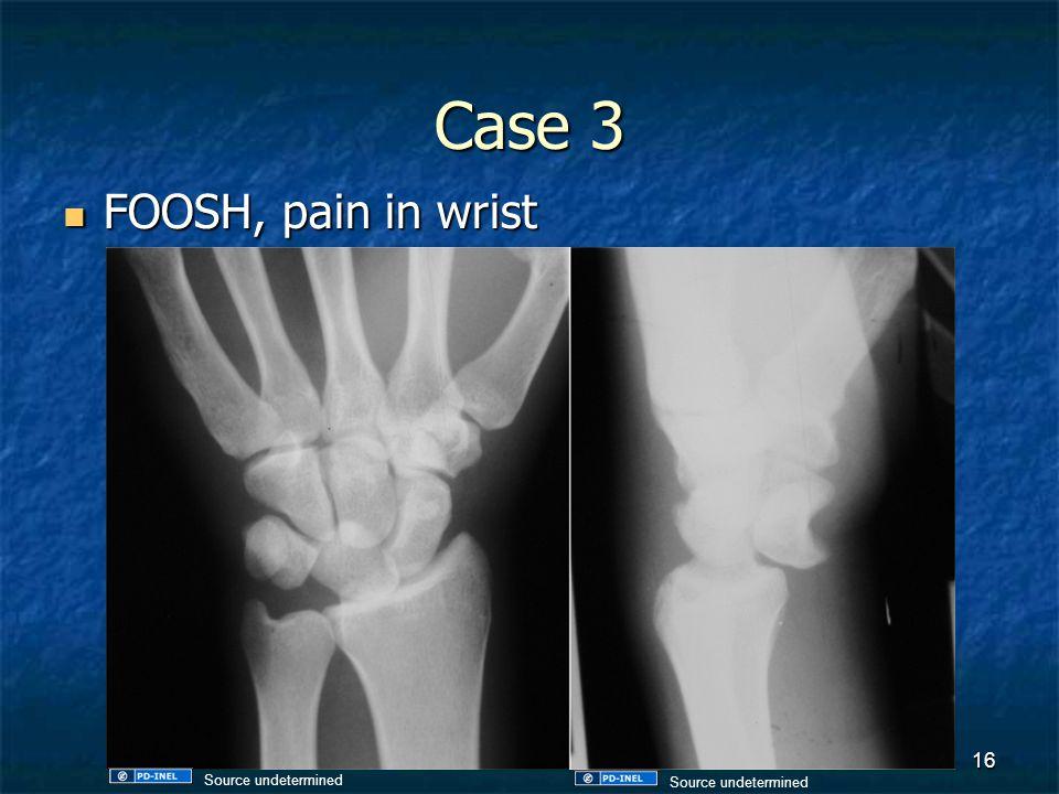Case 3 FOOSH, pain in wrist Source undetermined Source undetermined