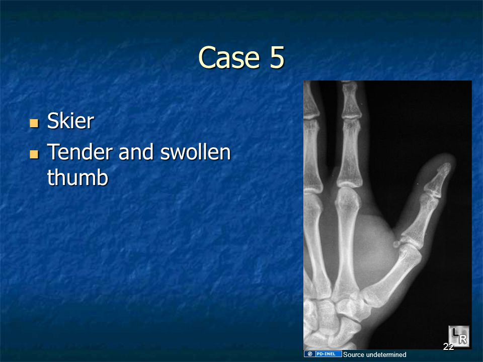 Case 5 Skier Tender and swollen thumb Source undetermined