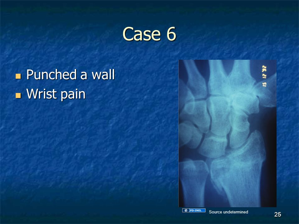 Case 6 Punched a wall Wrist pain Source undetermined