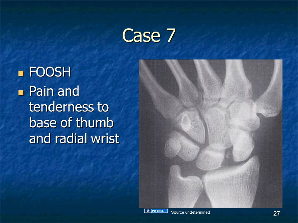 Case 7 FOOSH Pain and tenderness to base of thumb and radial wrist