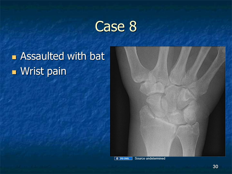 Case 8 Assaulted with bat Wrist pain Source undetermined