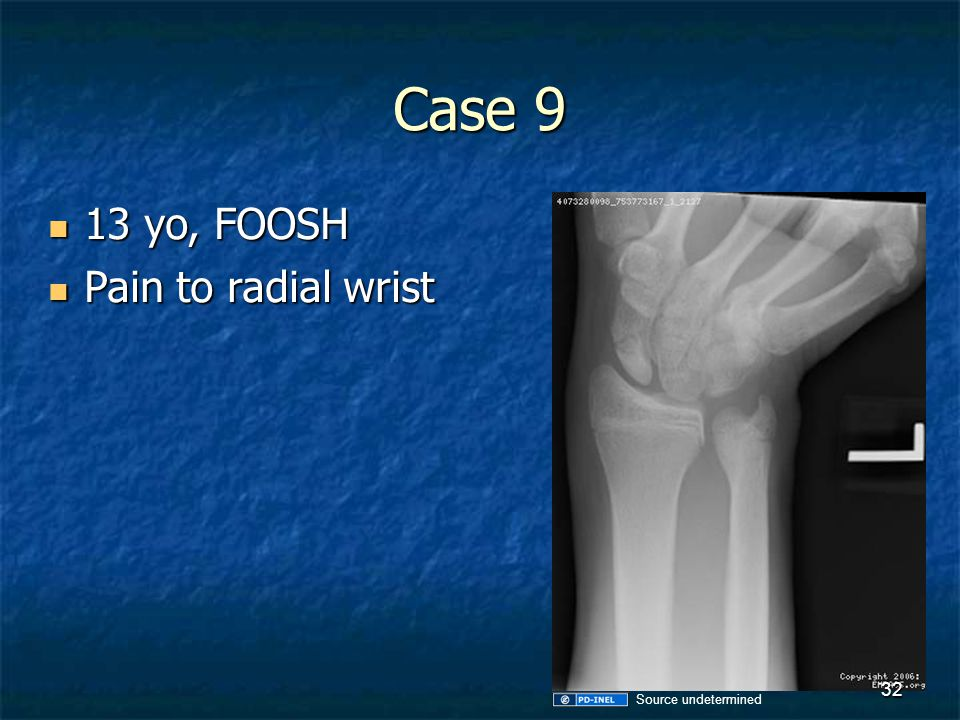Case 9 13 yo, FOOSH Pain to radial wrist Source undetermined