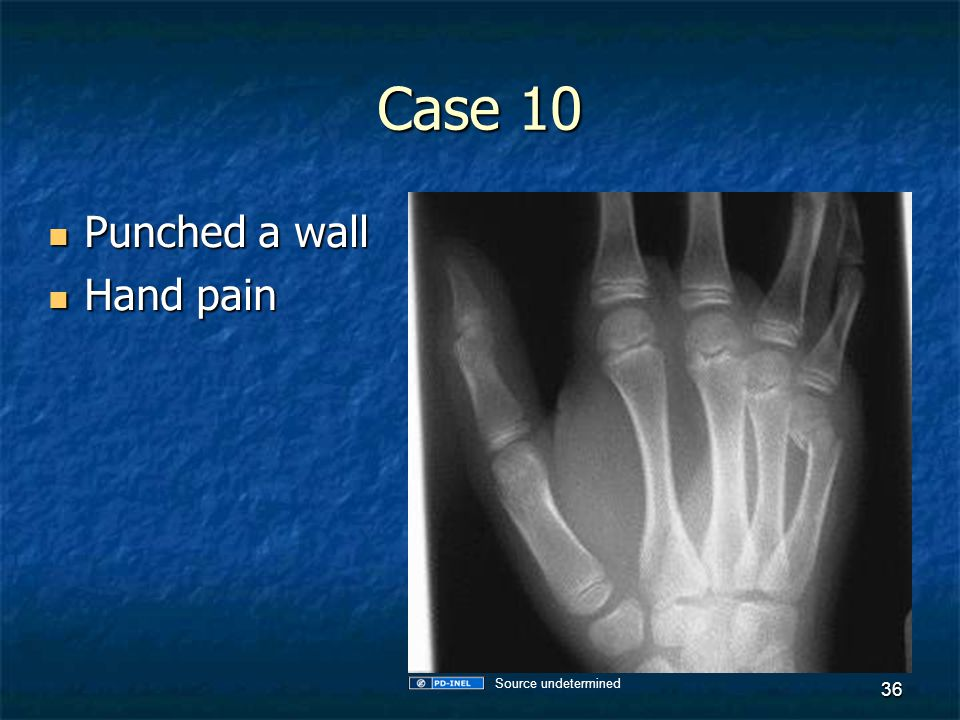 Case 10 Punched a wall Hand pain Source undetermined