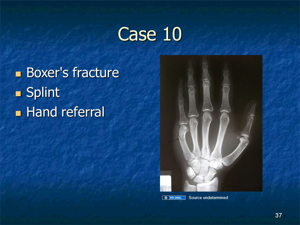 Case 10 Boxer s fracture Splint Hand referral Source undetermined