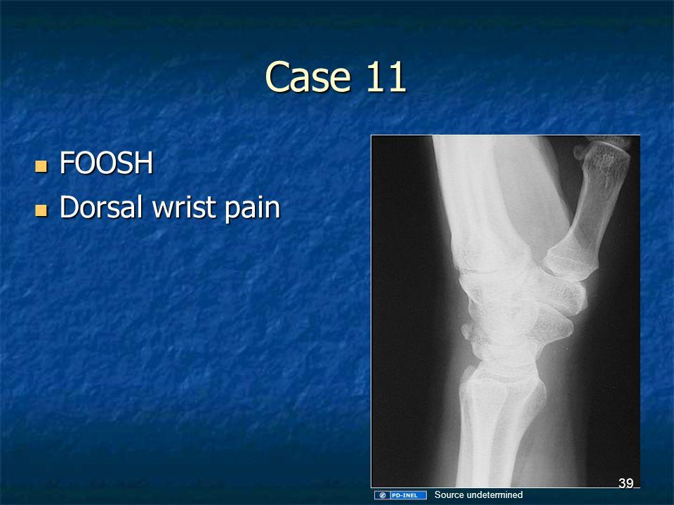 Case 11 FOOSH Dorsal wrist pain Source undetermined