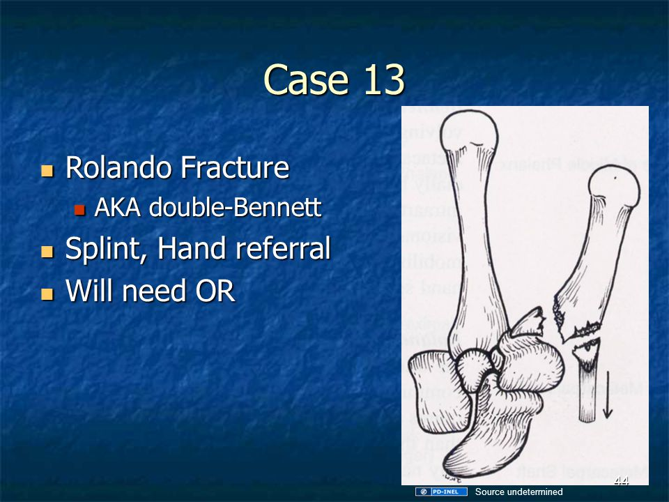 Case 13 Rolando Fracture Splint, Hand referral Will need OR