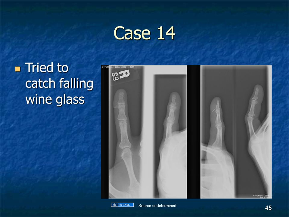Case 14 Tried to catch falling wine glass Source undetermined
