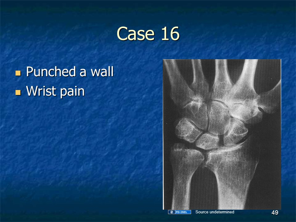 Case 16 Punched a wall Wrist pain Source undetermined