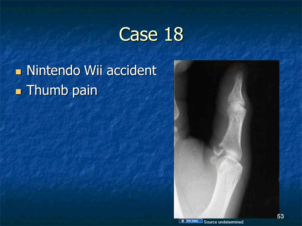 Case 18 Nintendo Wii accident Thumb pain Source undetermined
