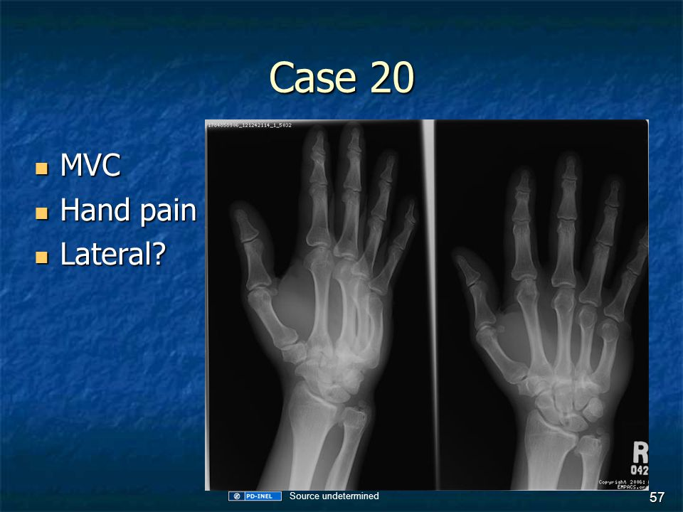 Case 20 MVC Hand pain Lateral Source undetermined