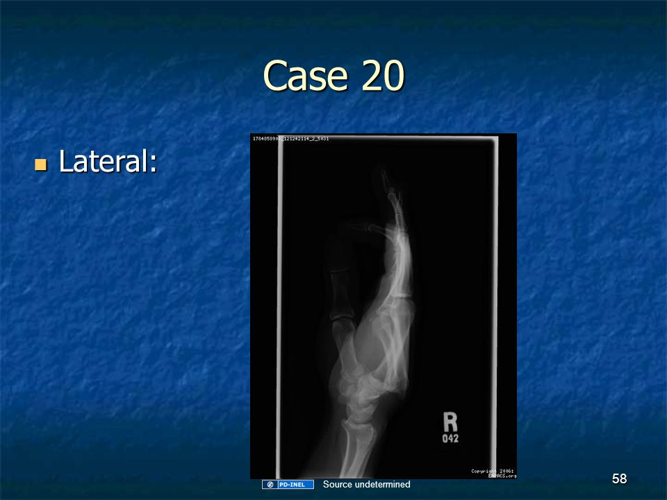 Case 20 Lateral: Source undetermined