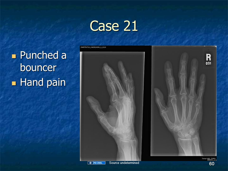Case 21 Punched a bouncer Hand pain Source undetermined