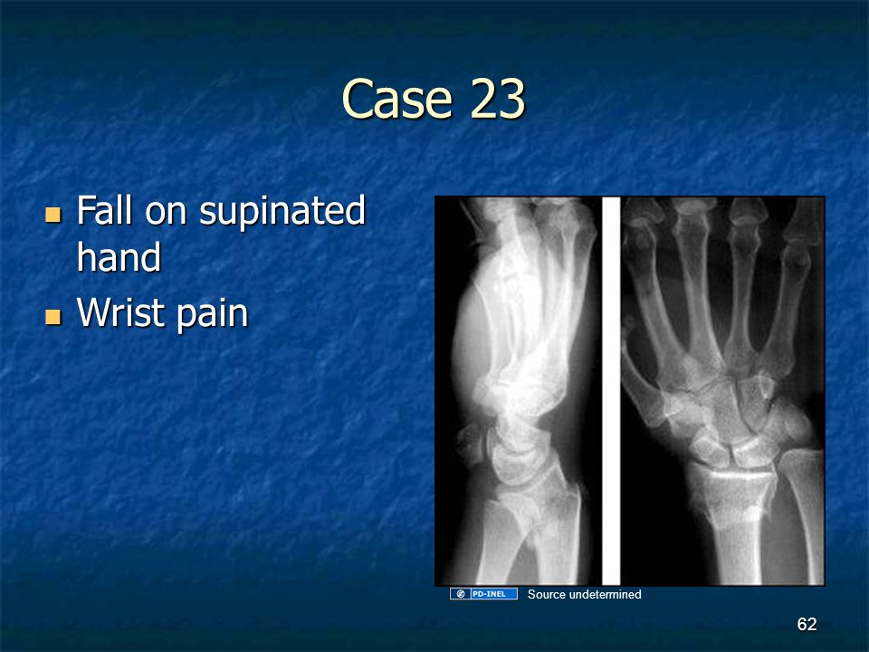 Case 23 Fall on supinated hand Wrist pain Source undetermined
