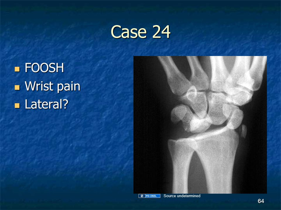 Case 24 FOOSH Wrist pain Lateral Source undetermined