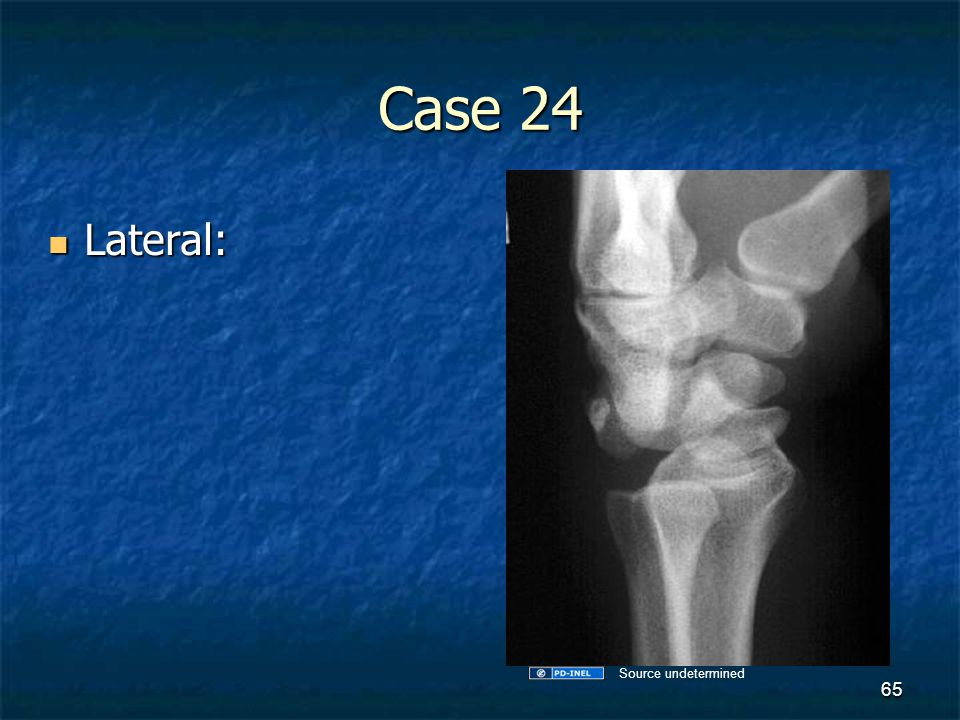 Case 24 Lateral: Source undetermined