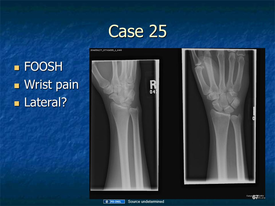 Case 25 FOOSH Wrist pain Lateral Source undetermined