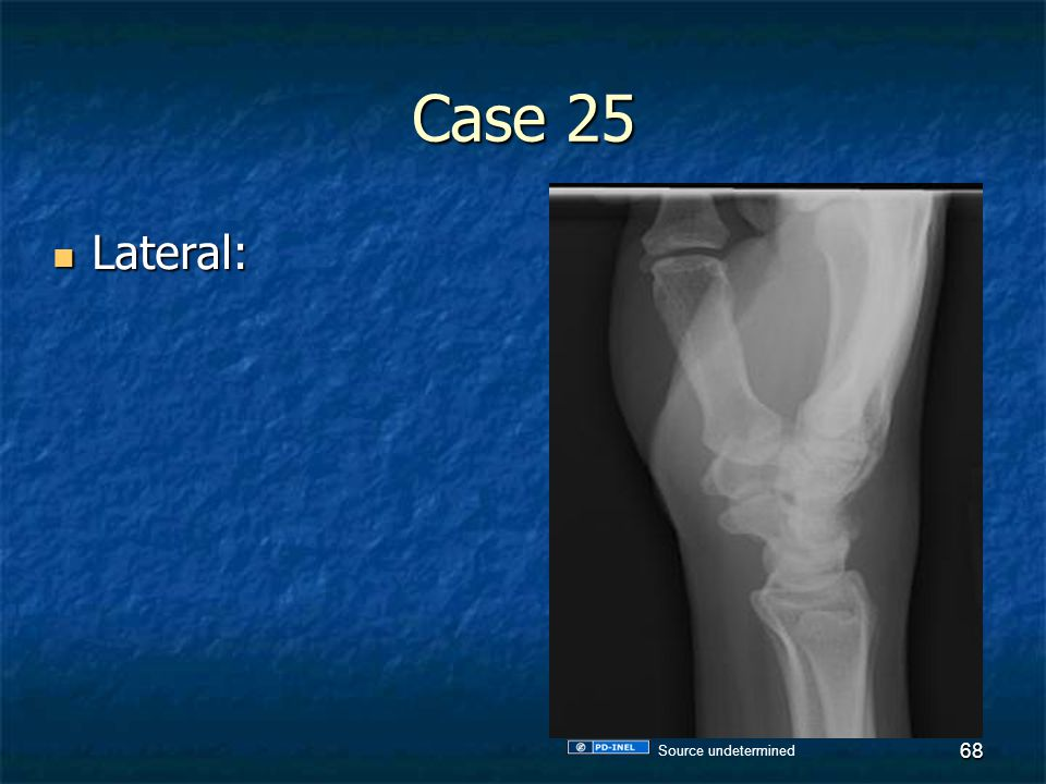 Case 25 Lateral: Source undetermined