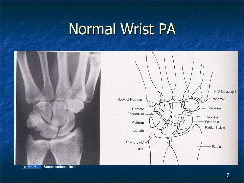 Normal Wrist PA Source undetermined