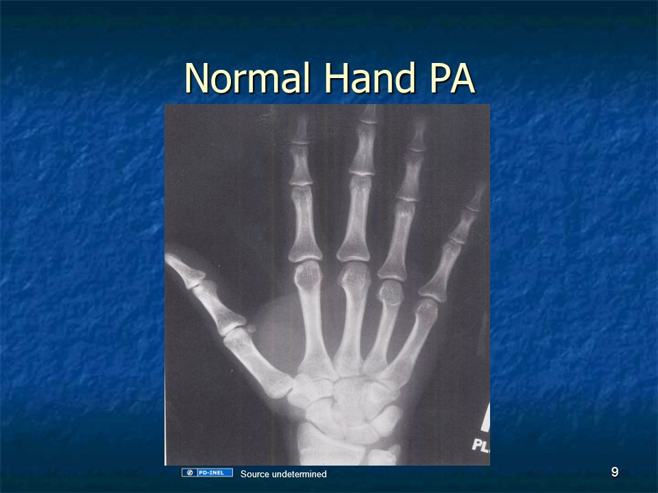 Normal Hand PA No key because I think you can figure out which bone is which Source undetermined