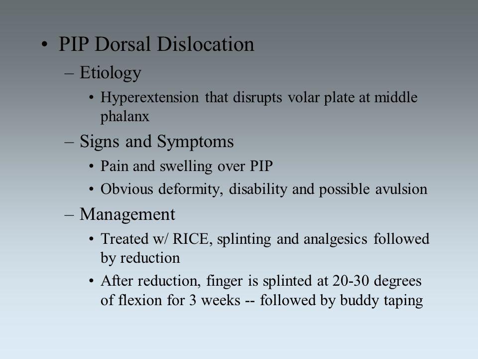 PIP Dorsal Dislocation