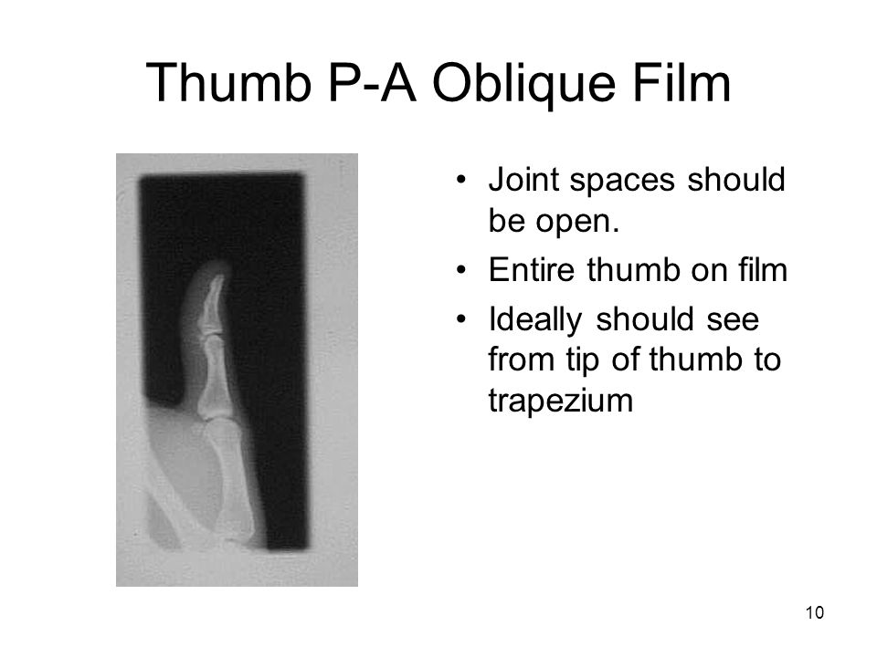 Thumb P-A Oblique Film Joint spaces should be open.