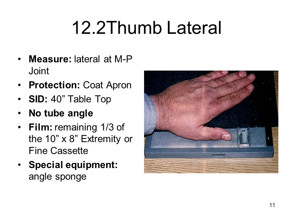 12.2Thumb Lateral Measure: lateral at M-P Joint Protection: Coat Apron