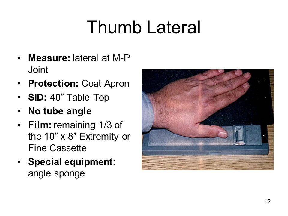 Thumb Lateral Measure: lateral at M-P Joint Protection: Coat Apron