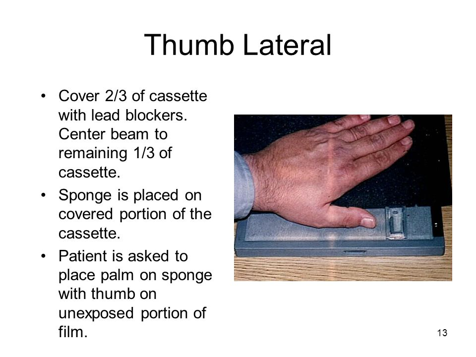 Thumb Lateral Cover 2/3 of cassette with lead blockers. Center beam to remaining 1/3 of cassette.