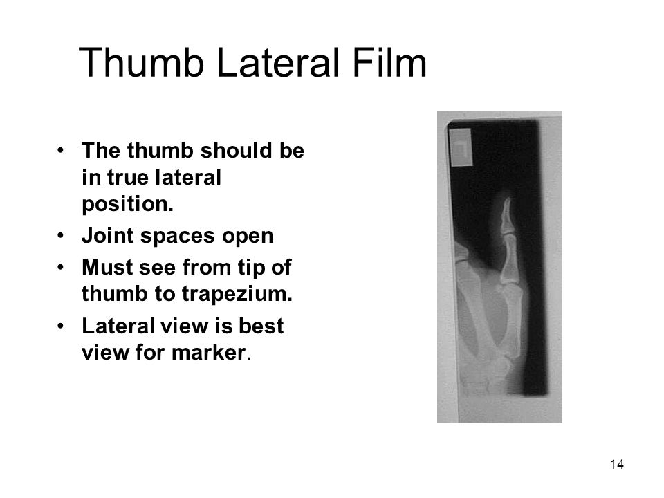 Thumb Lateral Film The thumb should be in true lateral position.