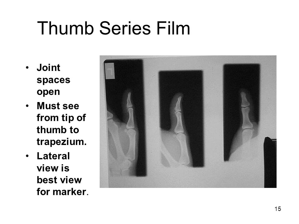 Thumb Series Film Joint spaces open