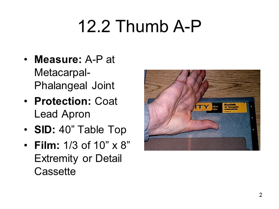 12.2 Thumb A-P Measure: A-P at Metacarpal-Phalangeal Joint