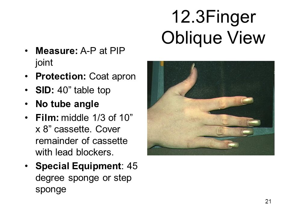 12.3Finger Oblique View Measure: A-P at PIP joint