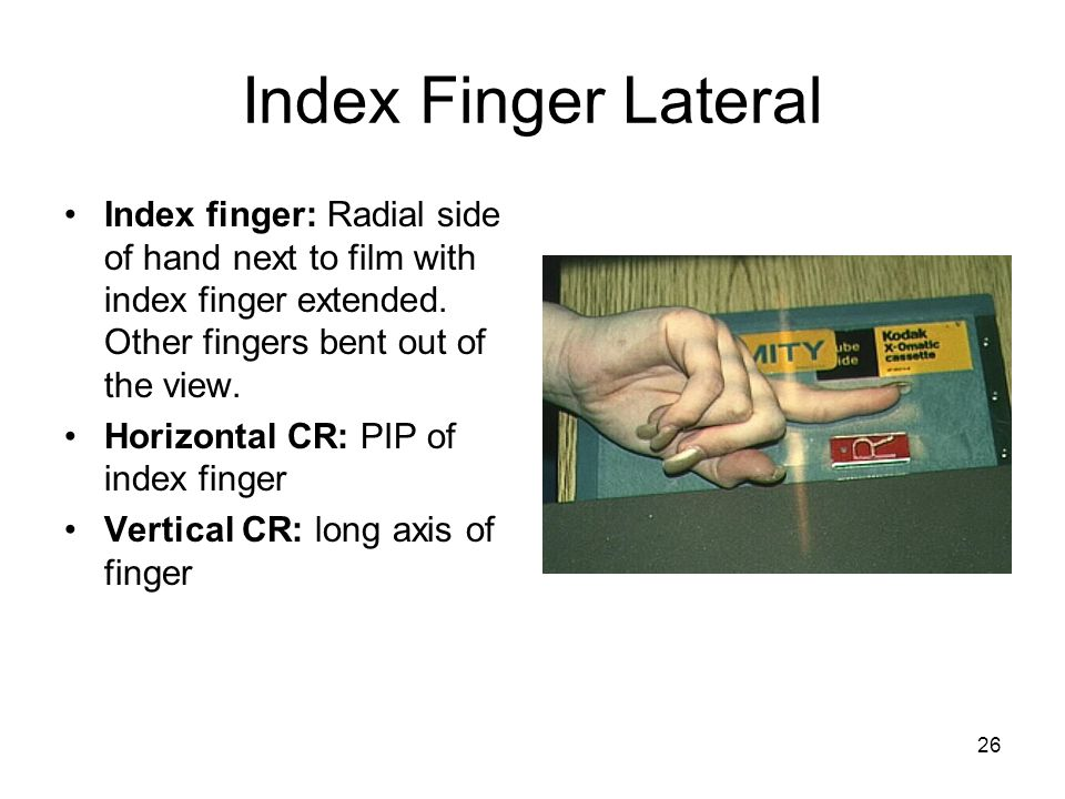 Index Finger Lateral Index finger: Radial side of hand next to film with index finger extended. Other fingers bent out of the view.