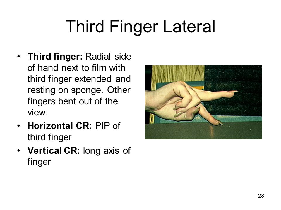 Third Finger Lateral