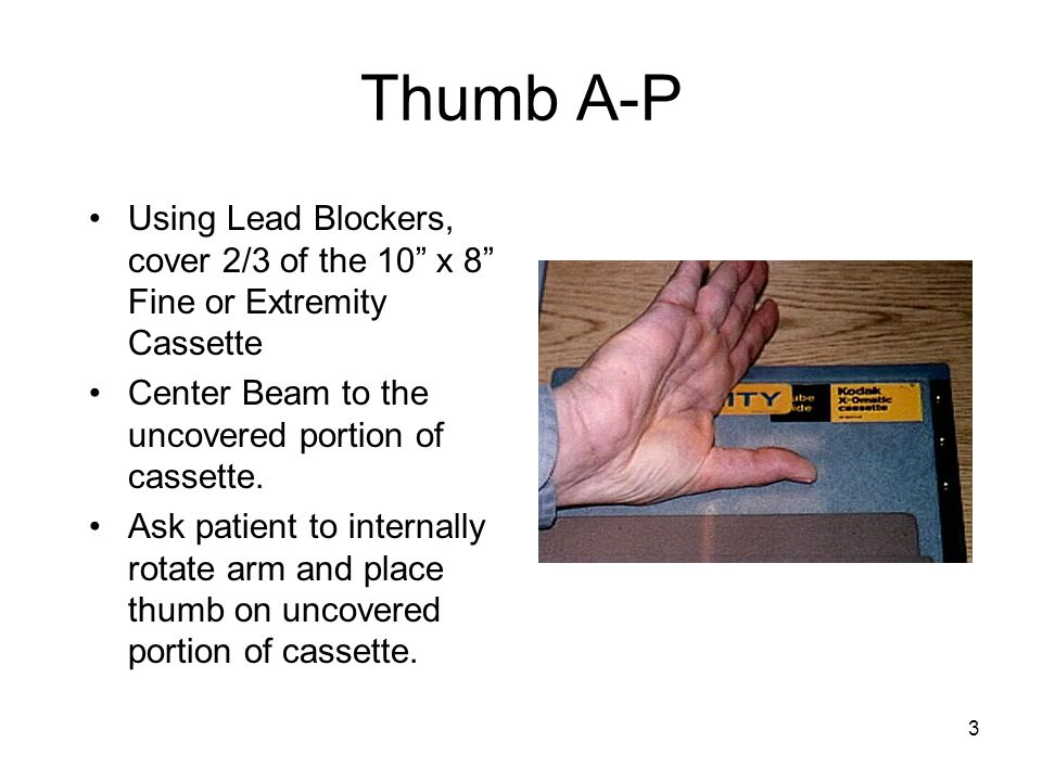 Thumb A-P Using Lead Blockers, cover 2/3 of the 10 x 8 Fine or Extremity Cassette. Center Beam to the uncovered portion of cassette.
