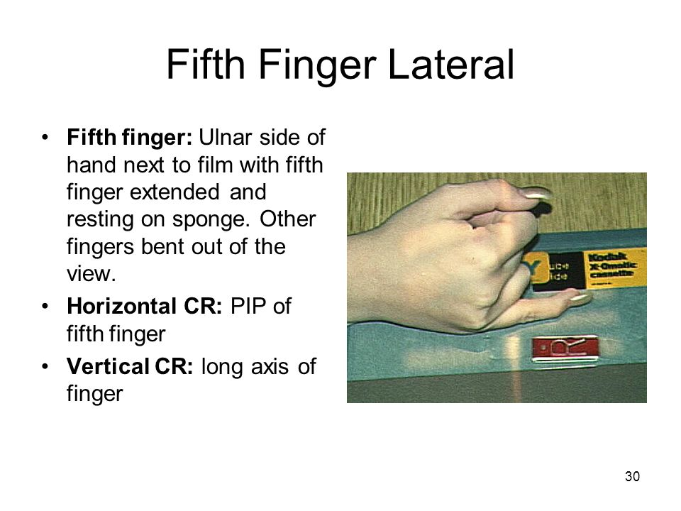 Fifth Finger Lateral