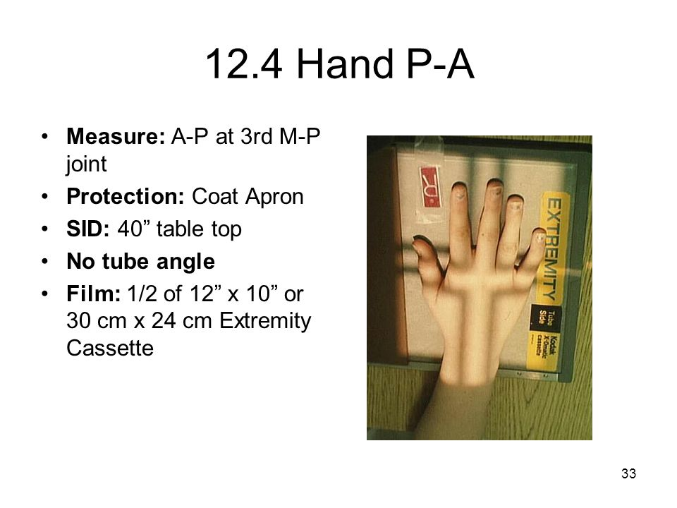 12.4 Hand P-A Measure: A-P at 3rd M-P joint Protection: Coat Apron